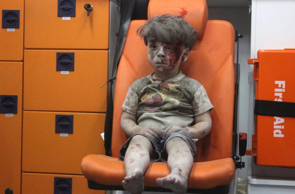 O menino sírio de 5 anos Omran Daqneesh na ambulância depois de um ataque aéreo | Foto: Mahmud Rslan/Anadolu Agency/Getty Images